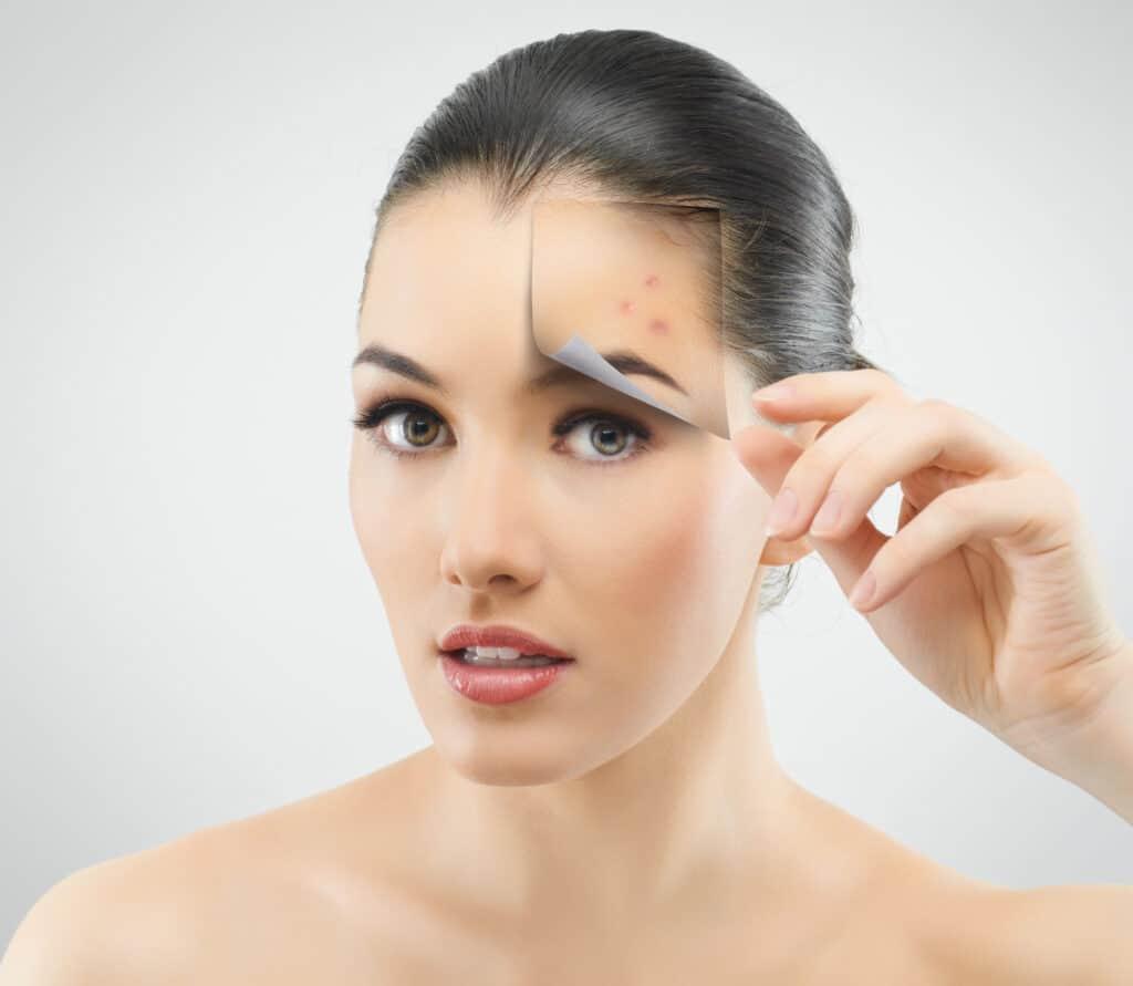 beauty hacks using peroxide